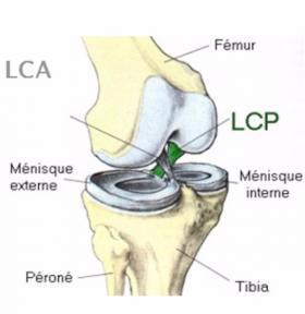 Traitement chirurgical de l'arthrose du genou près de Saint-Omer