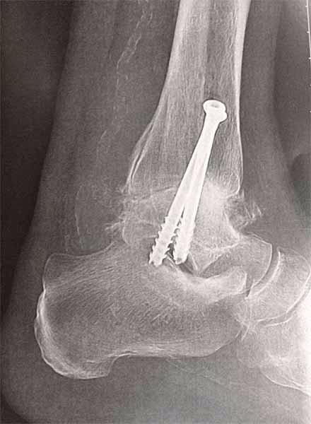 artisanat de qualité doux et léger design élégant Chirurgien de la cheville, chirurgien orthopédiste Calais ...